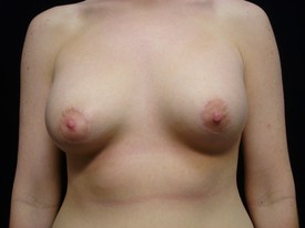 Breast Augmentation Patient Photo - Case 926 - after view