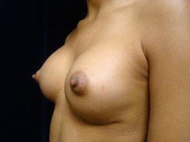 Breast Augmentation Patient Photo - Case 931 - after view-1