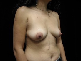 Breast Augmentation Patient Photo - Case 951 - before view-1
