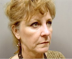Facelift Patient Photo - Case 1106 - before view-1
