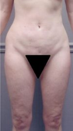 Liposuction - Case 1152 - Before