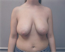 Breast Reduction Patient Photo - Case 1061 - before view-0